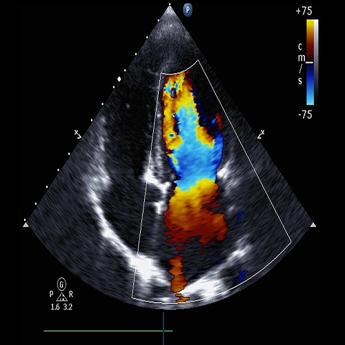 Adult Echocardiography training course: